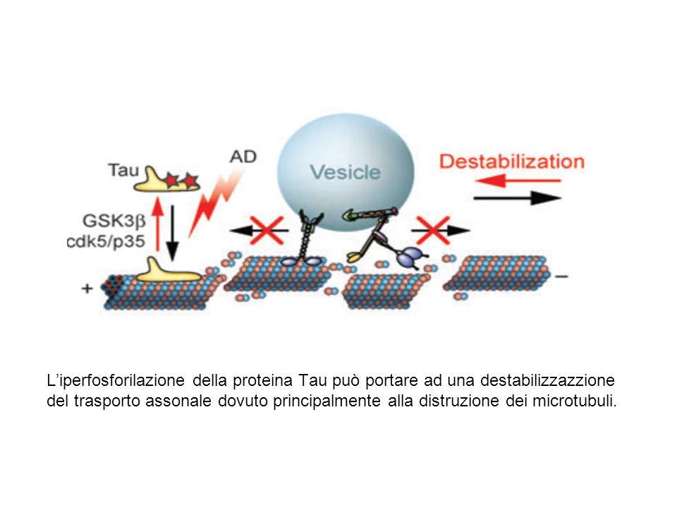 L'iperfosforilazione della proteina Tau può portare ad una destabilizzazzione del trasporto assonale dovuto principalmente alla distruzione dei microt