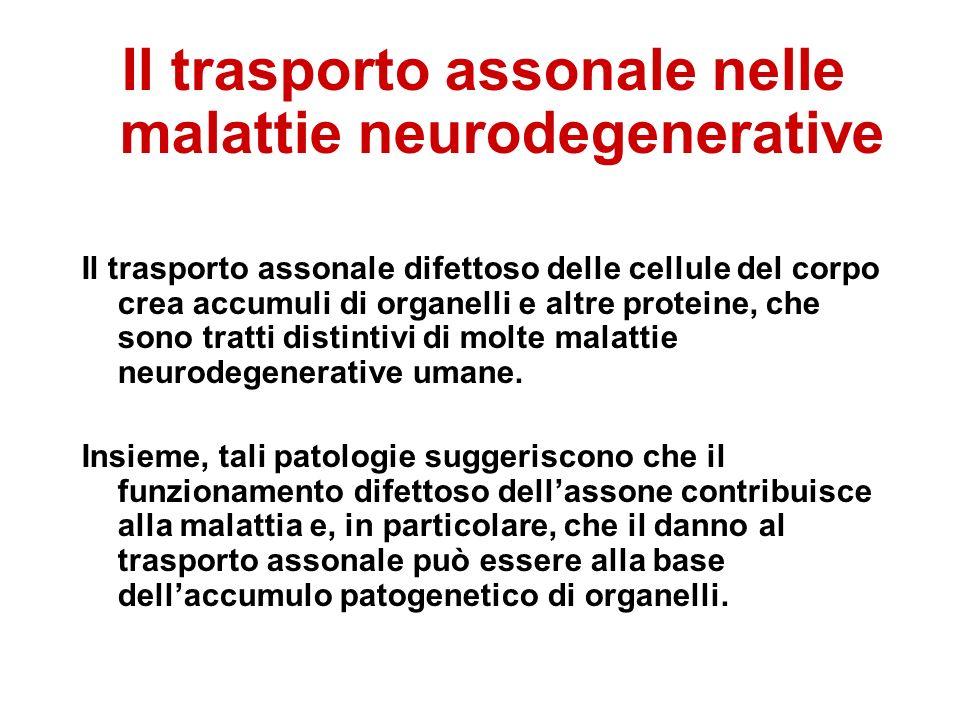 Il trasporto assonale nelle malattie neurodegenerative Il trasporto assonale difettoso delle cellule del corpo crea accumuli di organelli e altre proteine,  che sono tratti distintivi di molte malattie neurodegenerative umane.