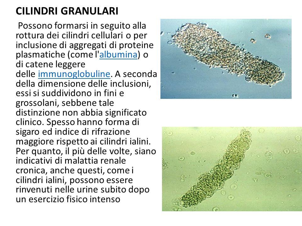CILINDRI GRANULARI Possono formarsi in seguito alla rottura dei cilindri cellulari o per inclusione di aggregati di proteine plasmatiche (come l'album