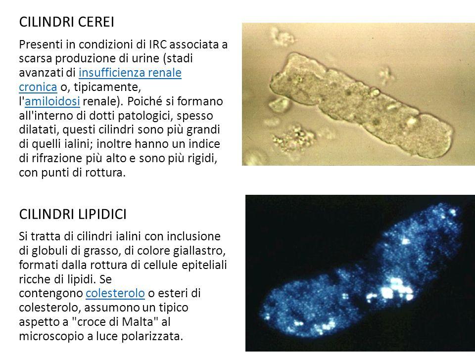 CILINDRI CEREI Presenti in condizioni di IRC associata a scarsa produzione di urine (stadi avanzati di insufficienza renale cronica o, tipicamente, l'