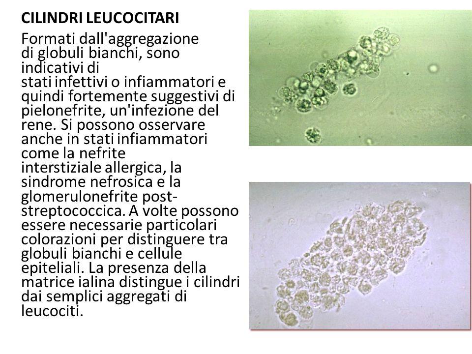 CILINDRI LEUCOCITARI Formati dall'aggregazione di globuli bianchi, sono indicativi di stati infettivi o infiammatori e quindi fortemente suggestivi di