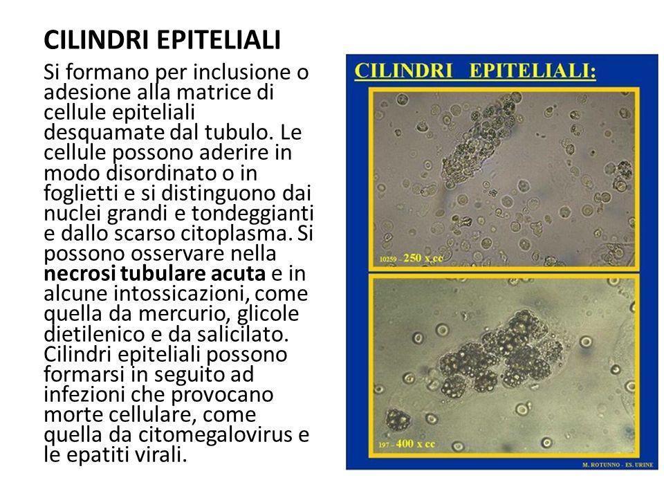 CILINDRI EPITELIALI Si formano per inclusione o adesione alla matrice di cellule epiteliali desquamate dal tubulo. Le cellule possono aderire in modo