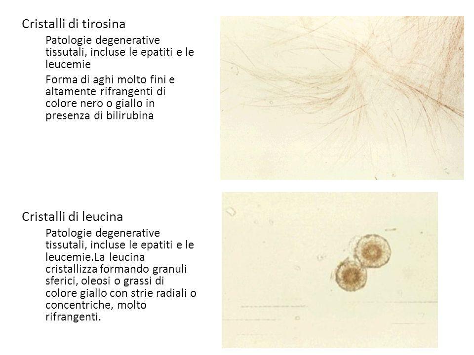 Cristalli di tirosina Patologie degenerative tissutali, incluse le epatiti e le leucemie Forma di aghi molto fini e altamente rifrangenti di colore ne