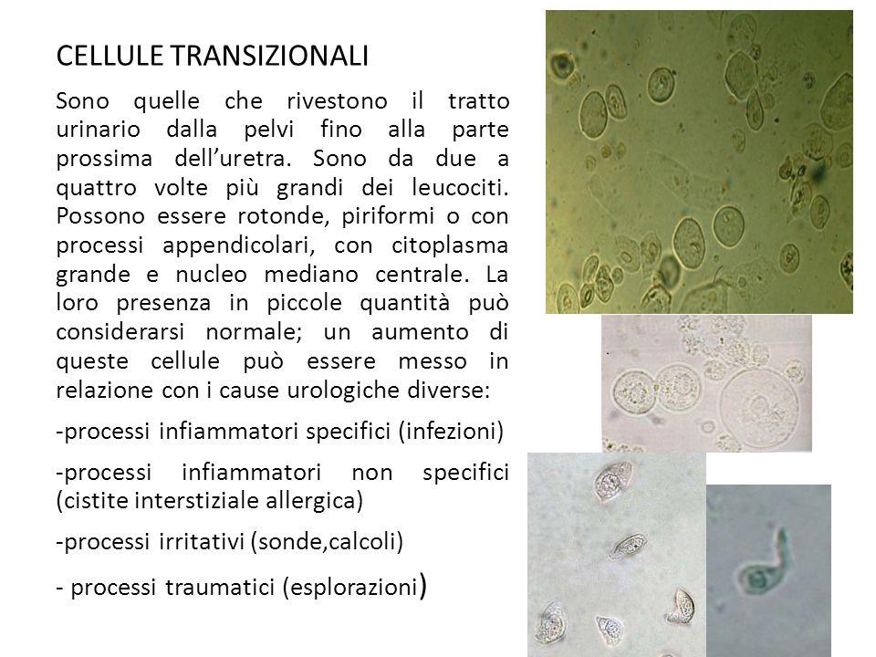 CELLULE TRANSIZIONALI Sono quelle che rivestono il tratto urinario dalla pelvi fino alla parte prossima dell'uretra. Sono da due a quattro volte più g