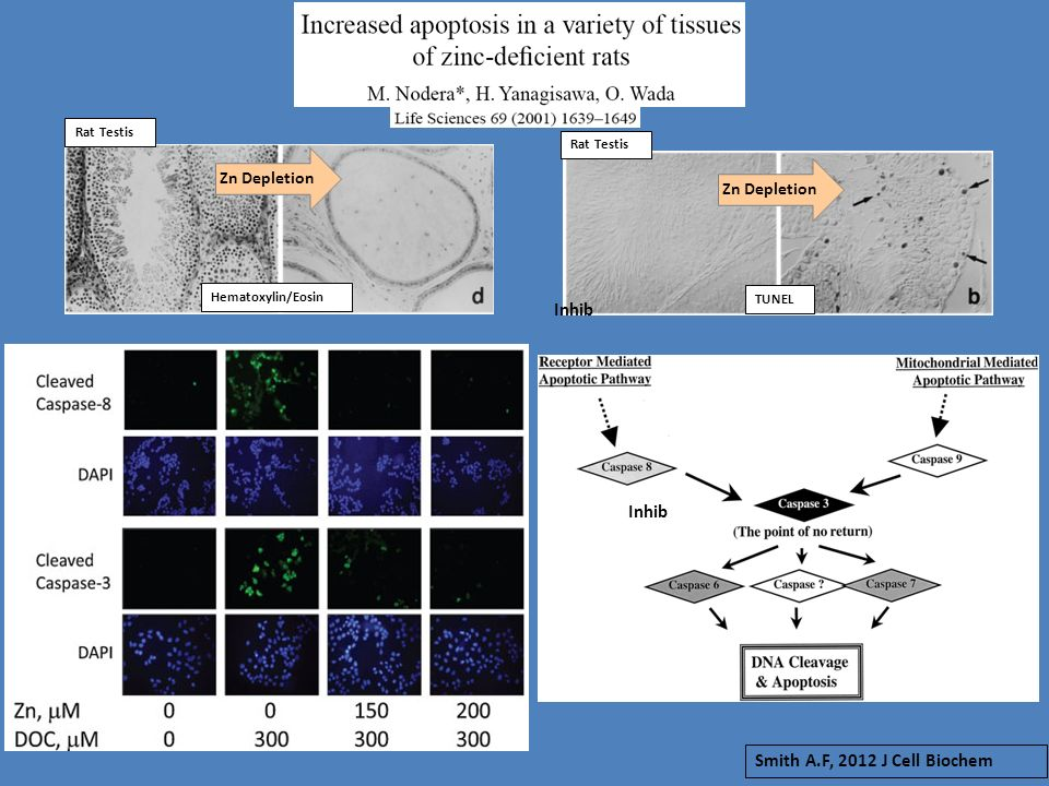 Hematoxylin/Eosin TUNEL Zn Depletion Inhib Smith A.F, 2012 J Cell Biochem Rat Testis