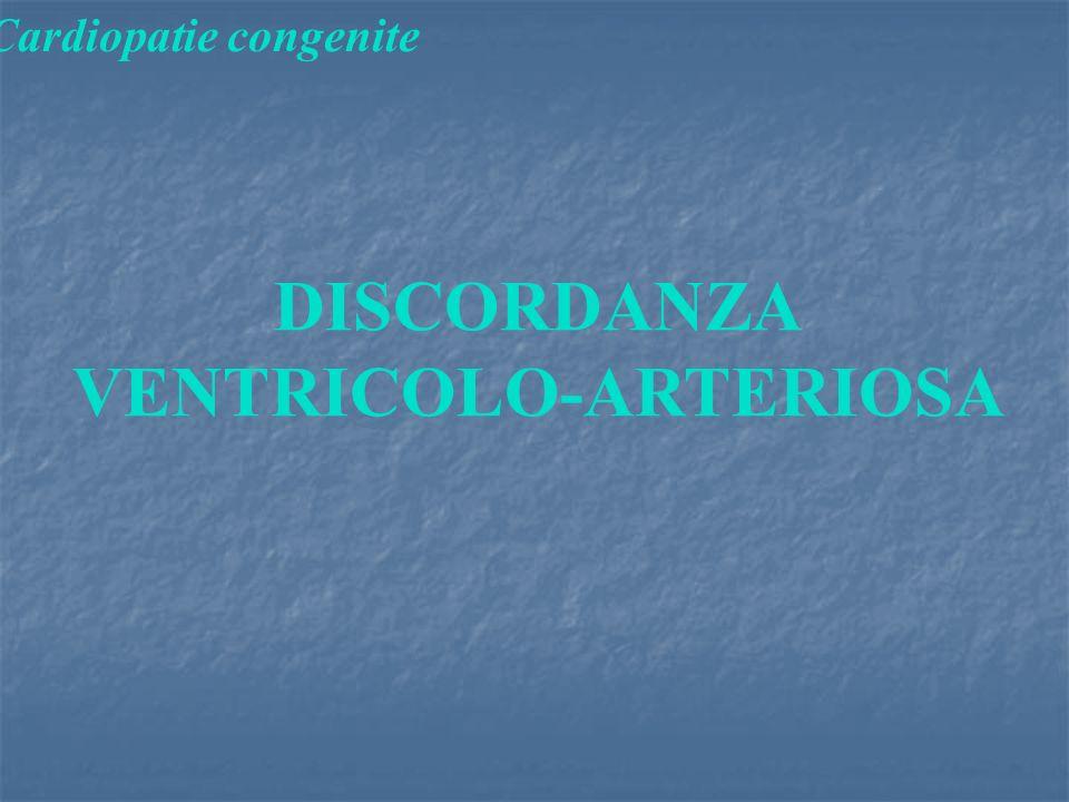 Cardiopatie congenite DISCORDANZA VENTRICOLO-ARTERIOSA