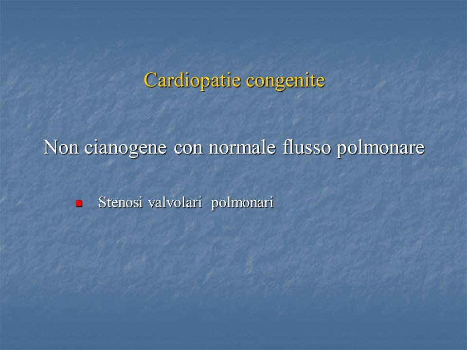 Cardiopatie congenite Non cianogene con normale flusso polmonare Stenosi valvolari polmonari Stenosi valvolari polmonari