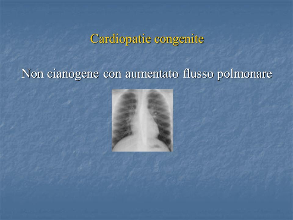 Cardiopatie congenite Non cianogene con aumentato flusso polmonare