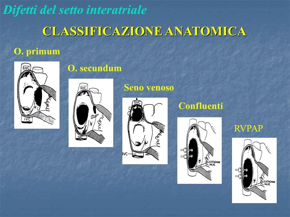 CLASSIFICAZIONE ANATOMICA Difetti del setto interatriale O. primum O. secundum Seno venoso Confluenti RVPAP