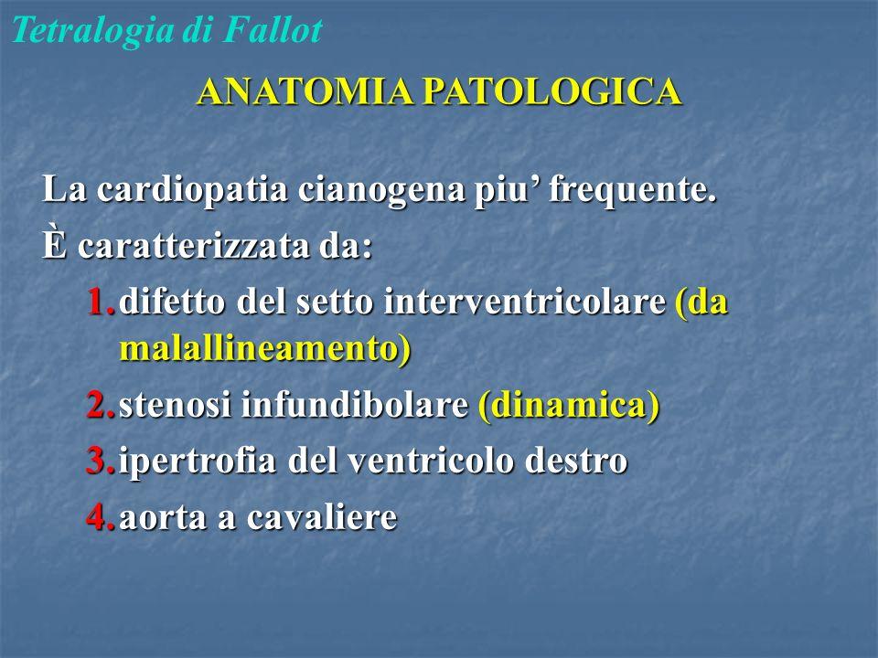 ANATOMIA PATOLOGICA Tetralogia di Fallot La cardiopatia cianogena piu' frequente. È caratterizzata da: 1.difetto del setto interventricolare (da malal