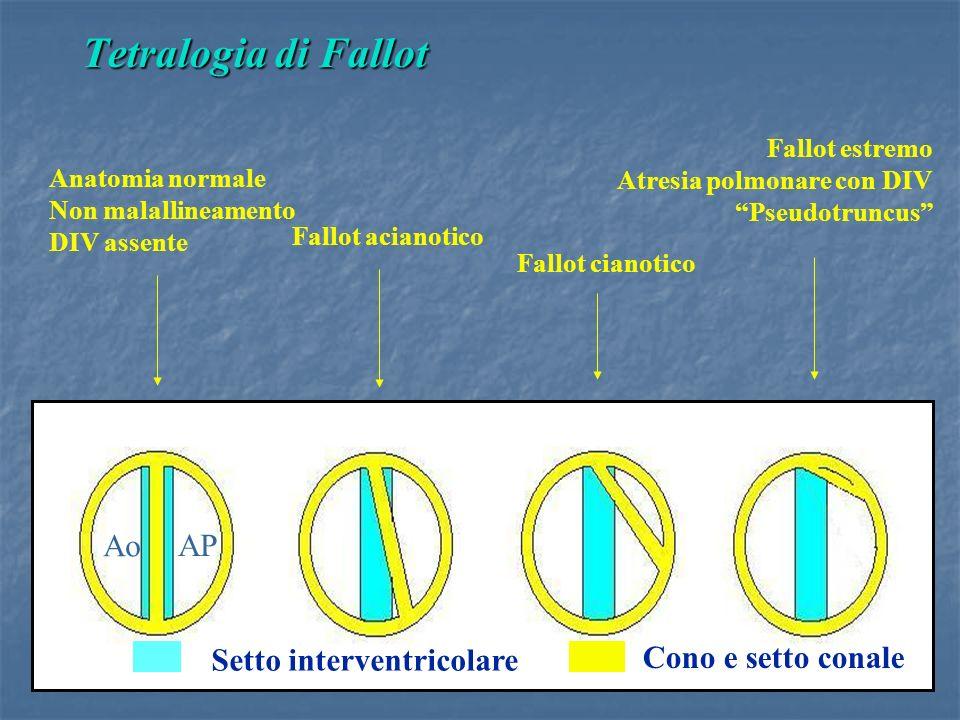 Setto interventricolare Cono e setto conale Fallot acianotico Fallot cianotico Fallot estremo Atresia polmonare con DIV Pseudotruncus Anatomia normale Non malallineamento DIV assente Ao AP