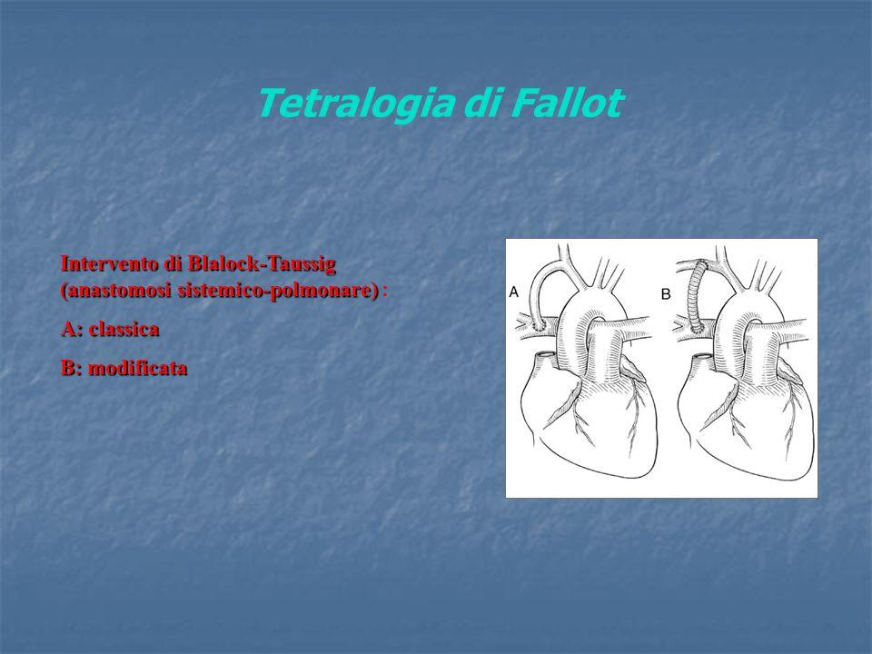 Tetralogia di Fallot Intervento di Blalock-Taussig (anastomosi sistemico-polmonare) Intervento di Blalock-Taussig (anastomosi sistemico-polmonare) : A: classica B: modificata