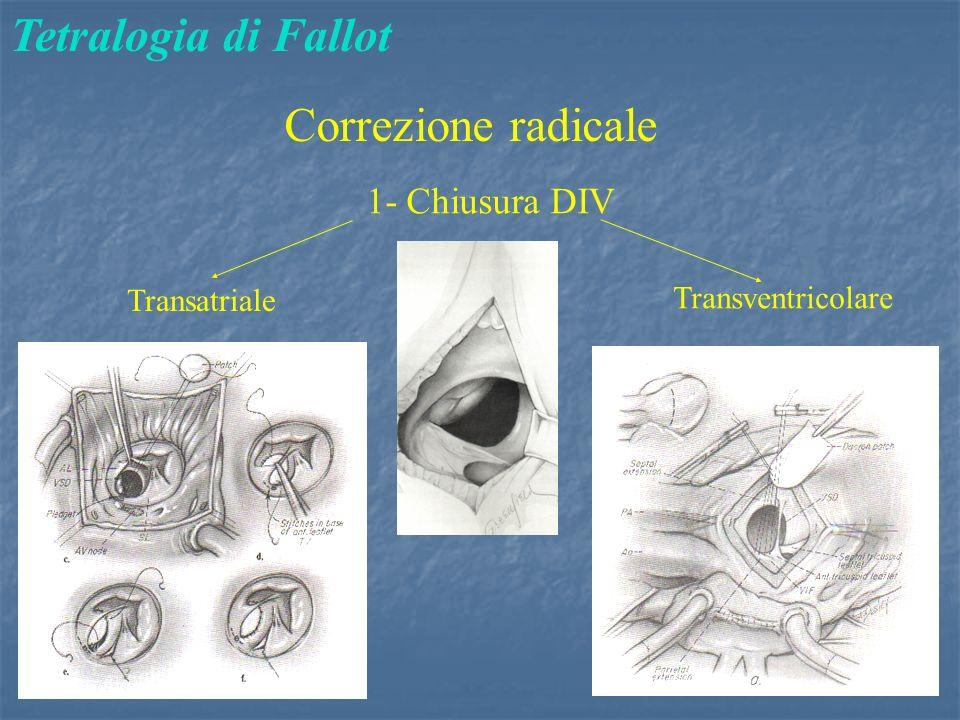 Tetralogia di Fallot Correzione radicale 1- Chiusura DIV Transventricolare Transatriale