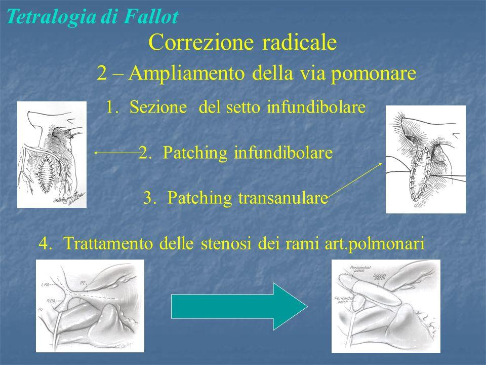 Tetralogia di Fallot Correzione radicale 2 – Ampliamento della via pomonare 1.Sezione del setto infundibolare 2.Patching infundibolare 3.Patching transanulare 4.Trattamento delle stenosi dei rami art.polmonari