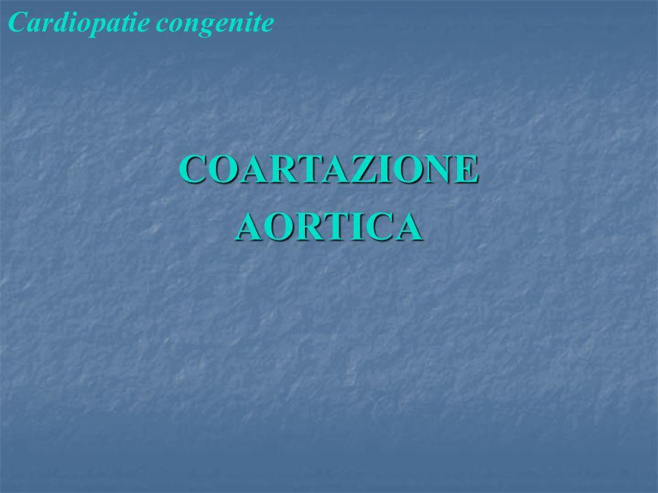 COARTAZIONEAORTICA Cardiopatie congenite