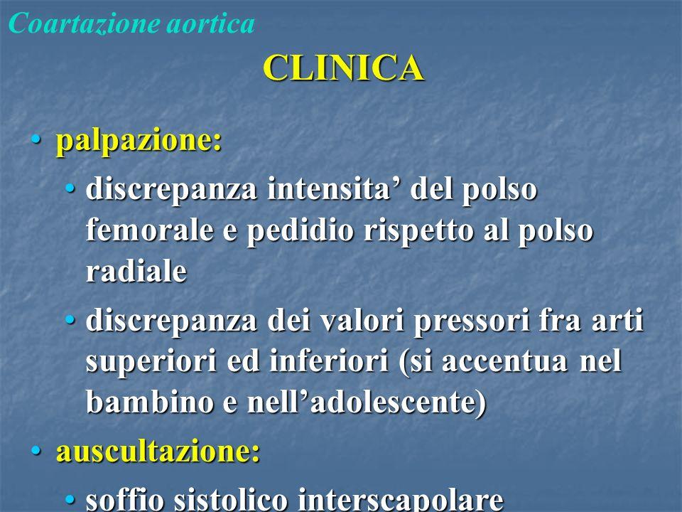CLINICA Coartazione aortica palpazione:palpazione: discrepanza intensita' del polso femorale e pedidio rispetto al polso radialediscrepanza intensita'