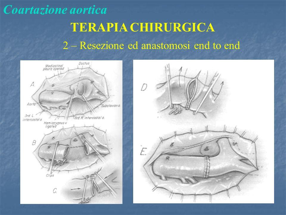 Coartazione aortica TERAPIA CHIRURGICA 2 – Resezione ed anastomosi end to end