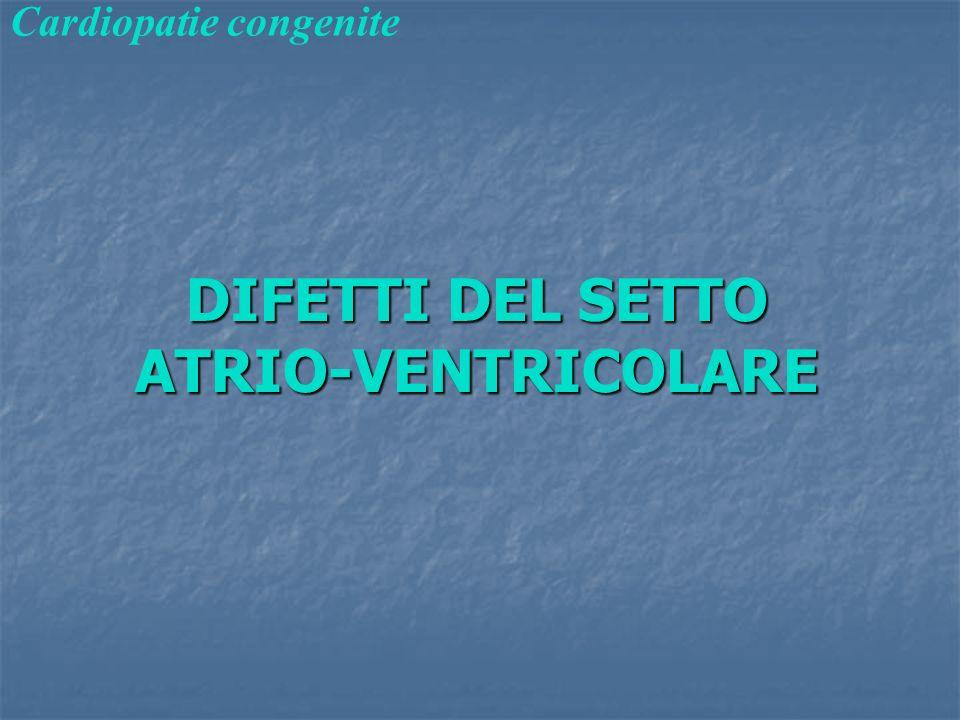 DIFETTI DEL SETTO ATRIO-VENTRICOLARE Cardiopatie congenite