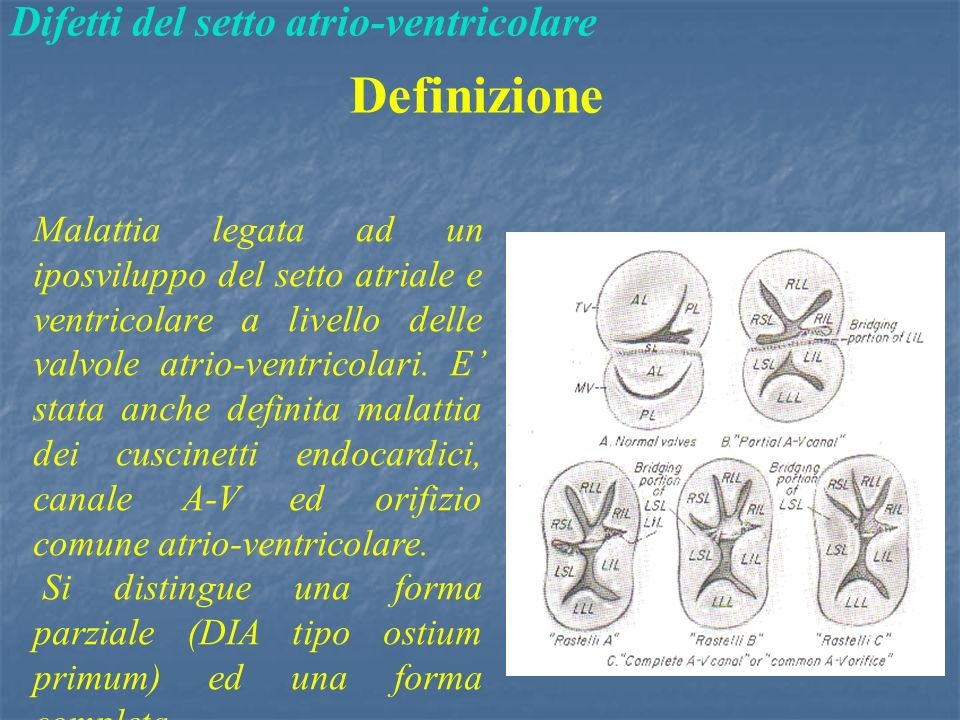Difetti del setto atrio-ventricolare Definizione Malattia legata ad un iposviluppo del setto atriale e ventricolare a livello delle valvole atrio-ventricolari.