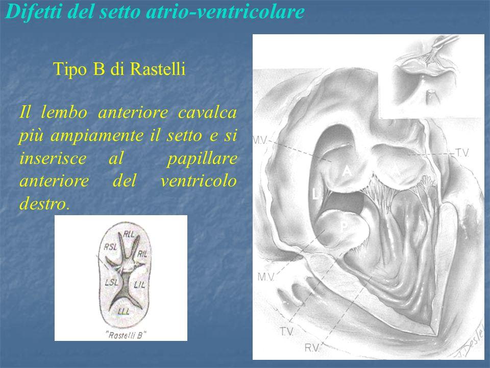Difetti del setto atrio-ventricolare Tipo B di Rastelli Il lembo anteriore cavalca più ampiamente il setto e si inserisce al papillare anteriore del ventricolo destro.