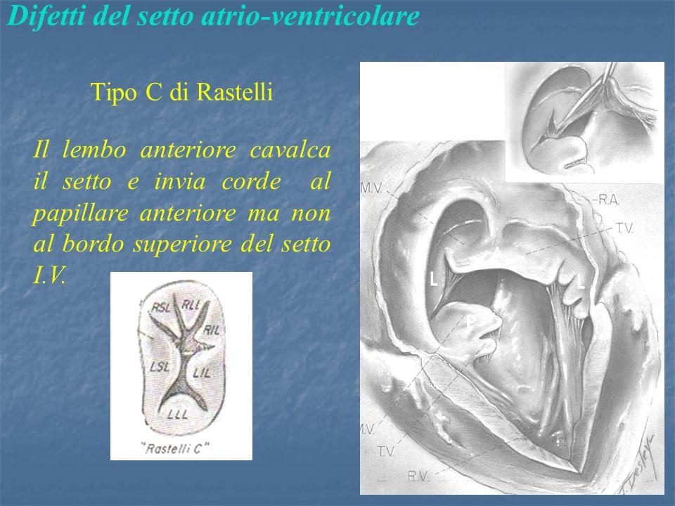 Difetti del setto atrio-ventricolare Tipo C di Rastelli Il lembo anteriore cavalca il setto e invia corde al papillare anteriore ma non al bordo superiore del setto I.V.