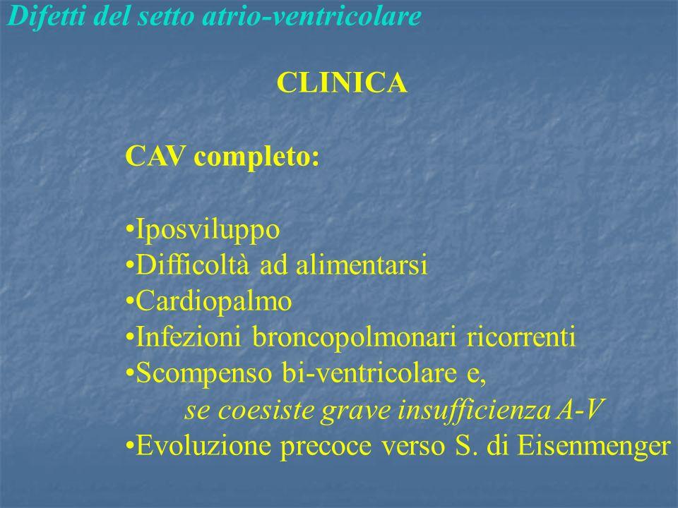 Difetti del setto atrio-ventricolare CLINICA CAV completo: Iposviluppo Difficoltà ad alimentarsi Cardiopalmo Infezioni broncopolmonari ricorrenti Scompenso bi-ventricolare e, se coesiste grave insufficienza A-V Evoluzione precoce verso S.