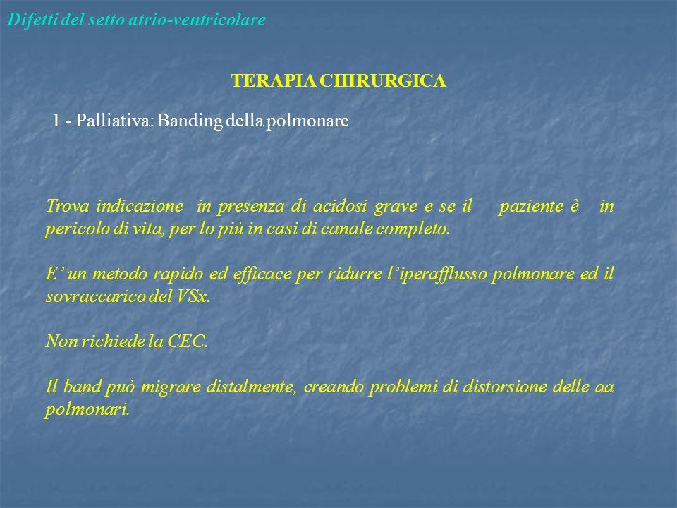 Difetti del setto atrio-ventricolare TERAPIA CHIRURGICA 1 - Palliativa: Banding della polmonare Trova indicazione in presenza di acidosi grave e se il
