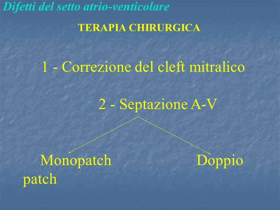 Difetti del setto atrio-venticolare TERAPIA CHIRURGICA 1 - Correzione del cleft mitralico 2 - Septazione A-V Monopatch Doppio patch