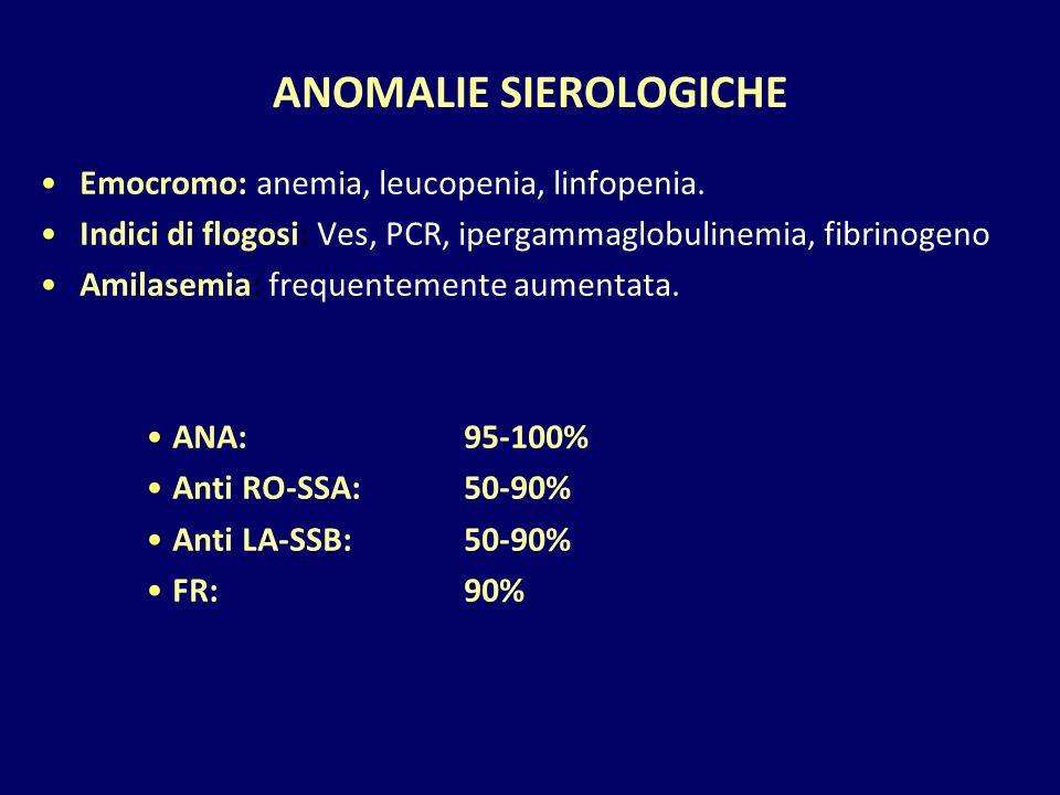 ANOMALIE SIEROLOGICHE Emocromo: anemia, leucopenia, linfopenia. Indici di flogosi: Ves, PCR, ipergammaglobulinemia, fibrinogeno Amilasemia: frequentem