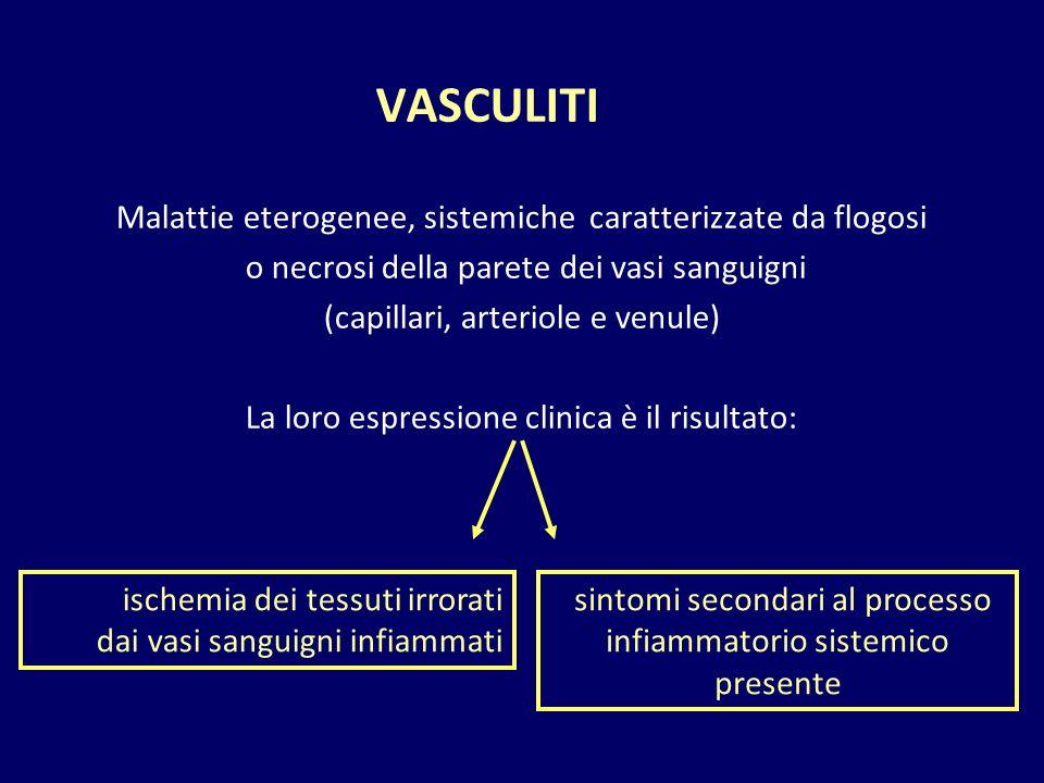 VASCULITI Malattie eterogenee, sistemiche caratterizzate da flogosi o necrosi della parete dei vasi sanguigni (capillari, arteriole e venule) La loro