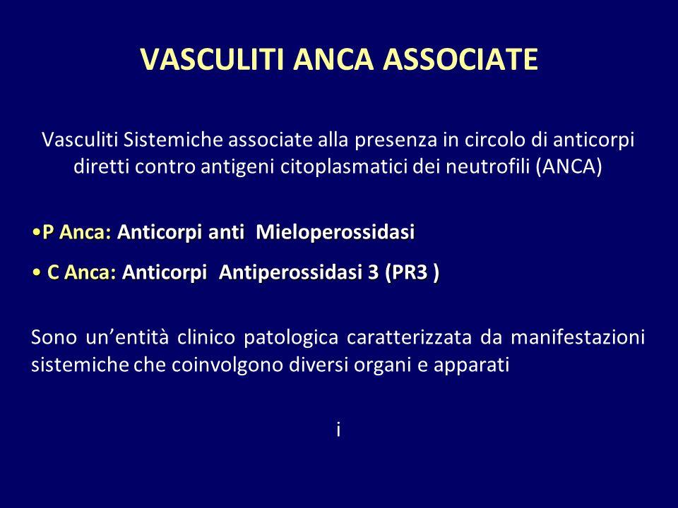 VASCULITI ANCA ASSOCIATE Vasculiti Sistemiche associate alla presenza in circolo di anticorpi diretti contro antigeni citoplasmatici dei neutrofili (A