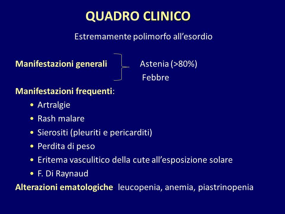 CLINICO QUADRO CLINICO Estremamente polimorfo all'esordio Manifestazioni generali Astenia (>80%) Febbre Manifestazioni frequenti: Artralgie Rash malar