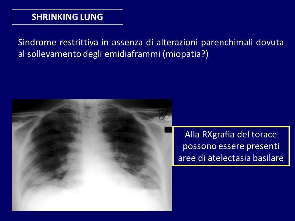 SHRINKING LUNG Sindrome restrittiva in assenza di alterazioni parenchimali dovuta al sollevamento degli emidiaframmi (miopatia?) Alla RXgrafia del tor