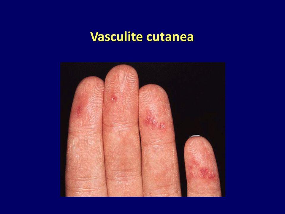 Vasculite cutanea