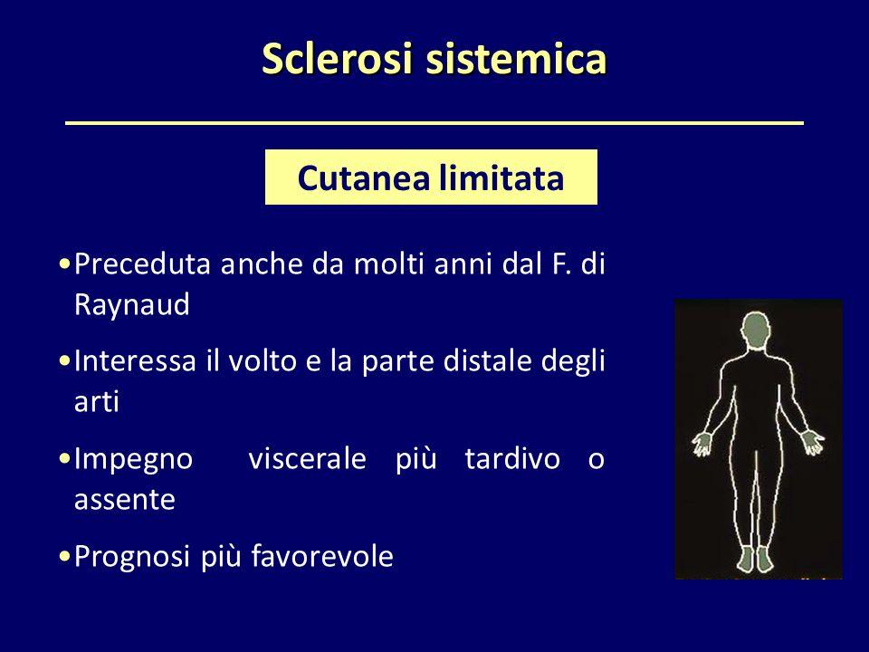 Sclerosi sistemica Preceduta anche da molti anni dal F. di Raynaud Interessa il volto e la parte distale degli arti Impegno viscerale più tardivo o as