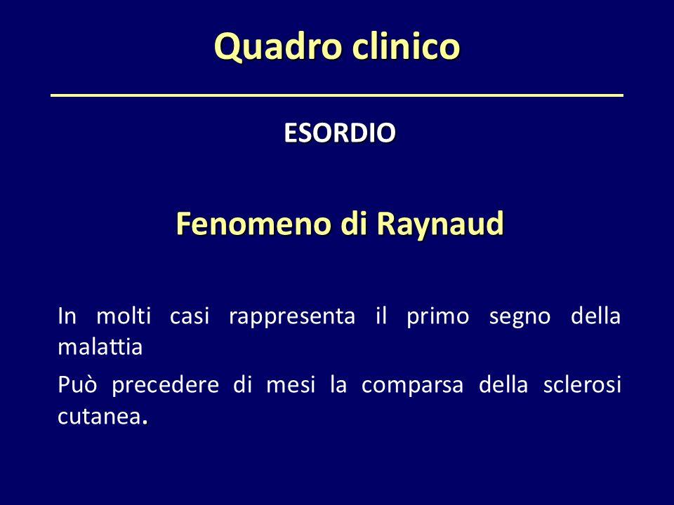 Quadro clinico ESORDIO Fenomeno di Raynaud In molti casi rappresenta il primo segno della malattia. Può precedere di mesi la comparsa della sclerosi c