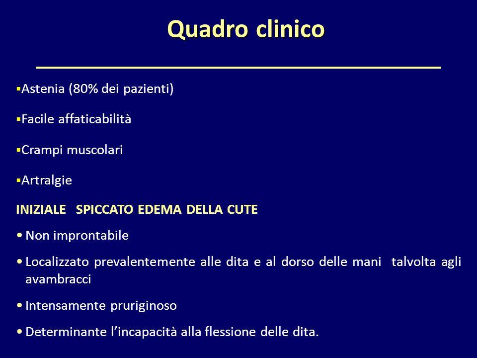 Quadro clinico  Astenia (80% dei pazienti)  Facile affaticabilità  Crampi muscolari  Artralgie INIZIALE SPICCATO EDEMA DELLA CUTE Non improntabile