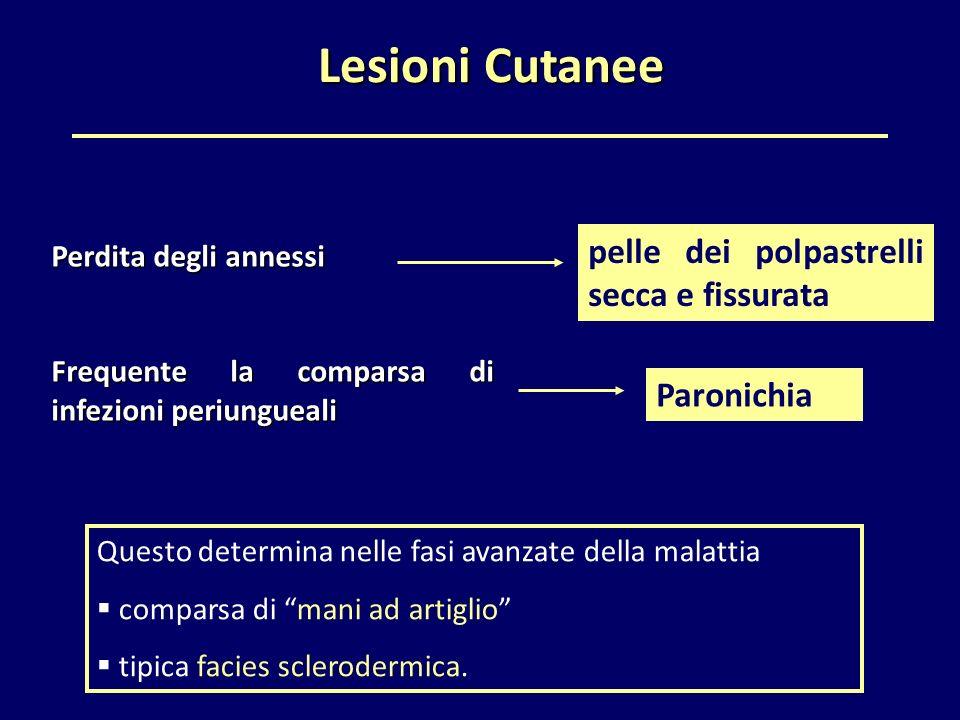 """Lesioni Cutanee Lesioni Cutanee Questo determina nelle fasi avanzate della malattia  comparsa di """"mani ad artiglio""""  tipica facies sclerodermica. pe"""