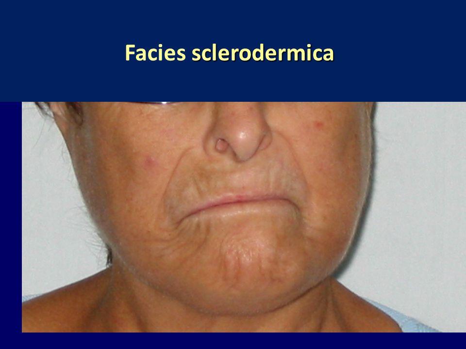 sclerodermica Facies sclerodermica