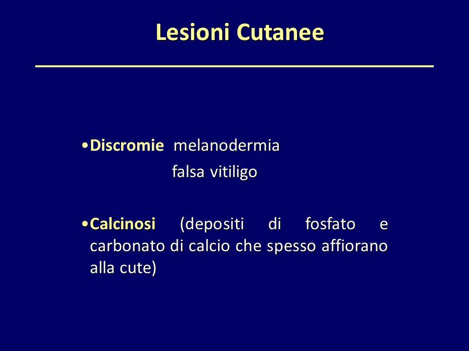 Lesioni Cutanee Lesioni Cutanee melanodermiaDiscromie melanodermia falsa vitiligo falsa vitiligo Calcinosi (depositi di fosfato e carbonato di calcio