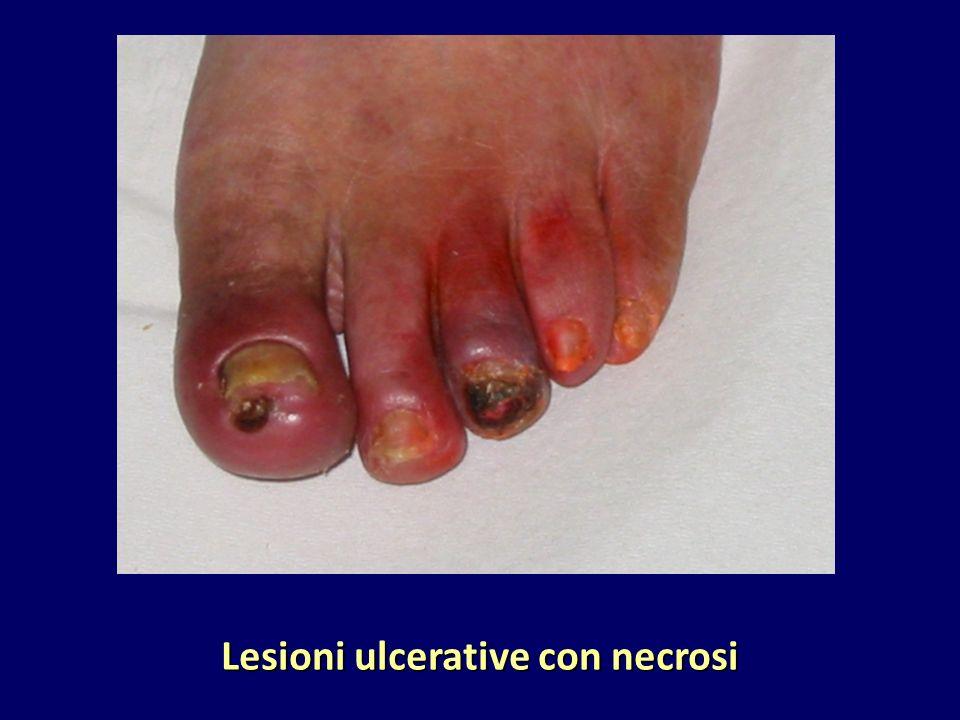 Lesioni ulcerative con necrosi