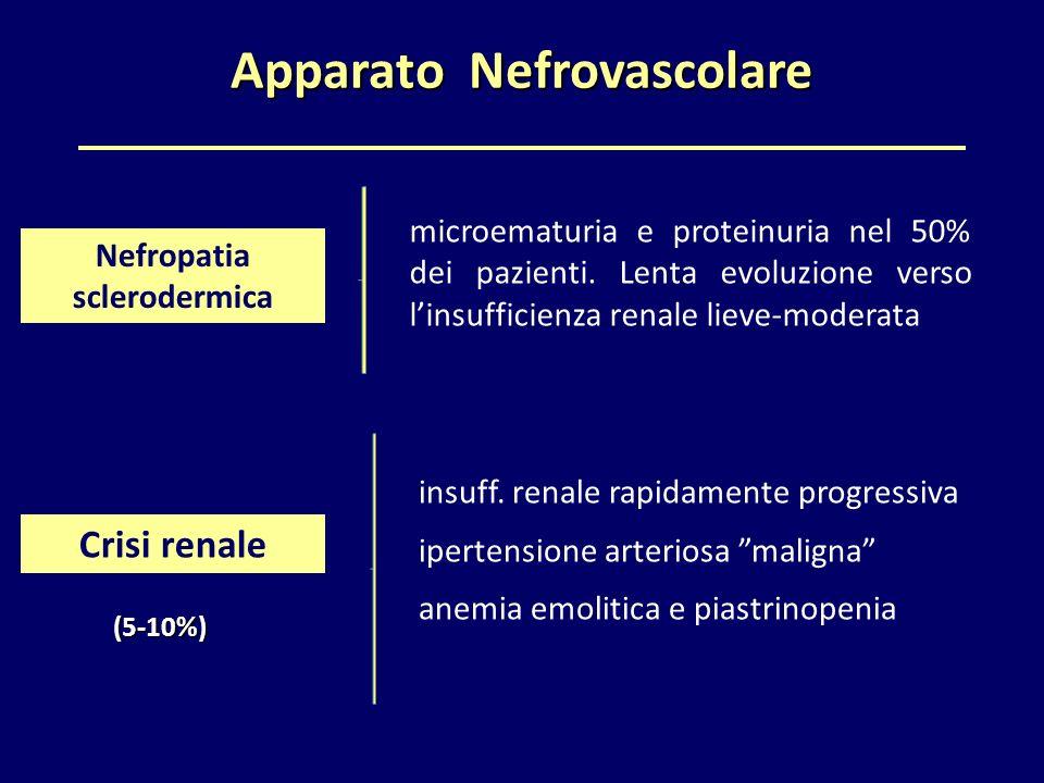 """Apparato Nefrovascolare insuff. renale rapidamente progressiva ipertensione arteriosa """"maligna"""" anemia emolitica e piastrinopenia Nefropatia scleroder"""