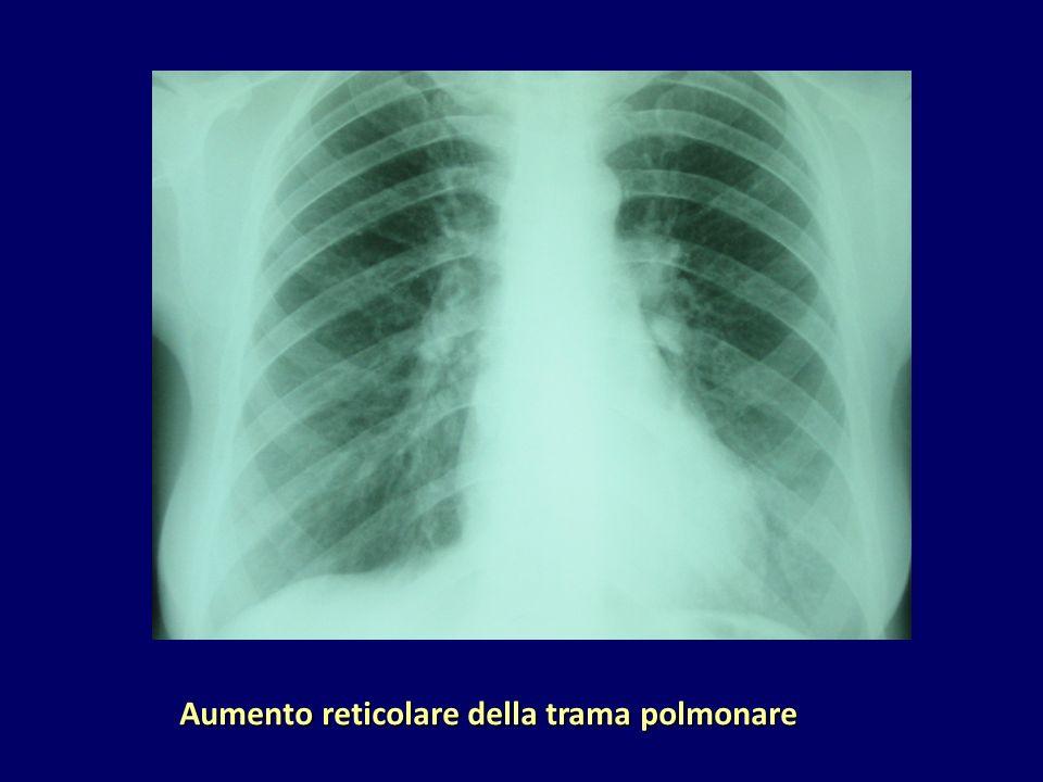 Aumento reticolare della trama polmonare