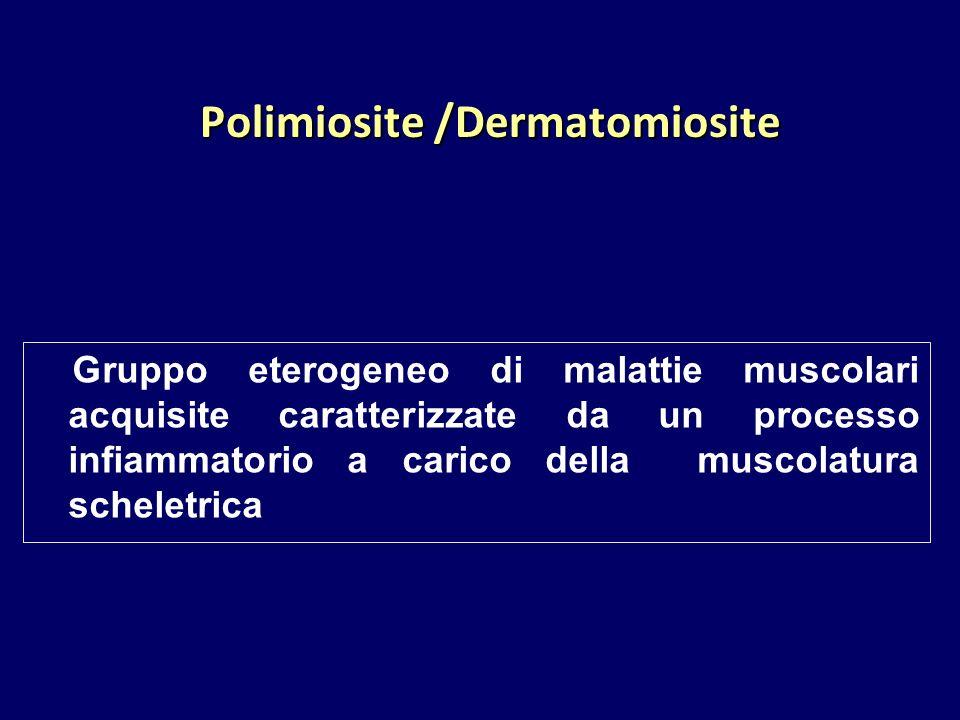 Polimiosite /Dermatomiosite Gruppo eterogeneo di malattie muscolari acquisite caratterizzate da un processo infiammatorio a carico della muscolatura s
