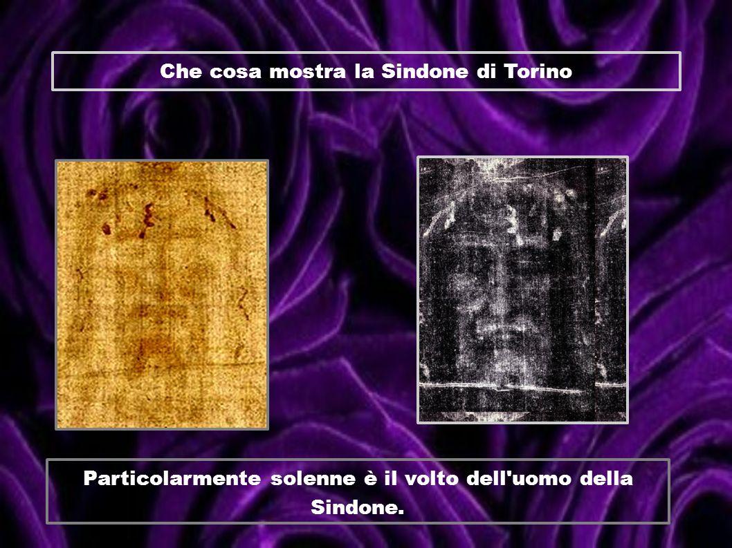 Che cosa mostra la Sindone di Torino Particolarmente solenne è il volto dell'uomo della Sindone.
