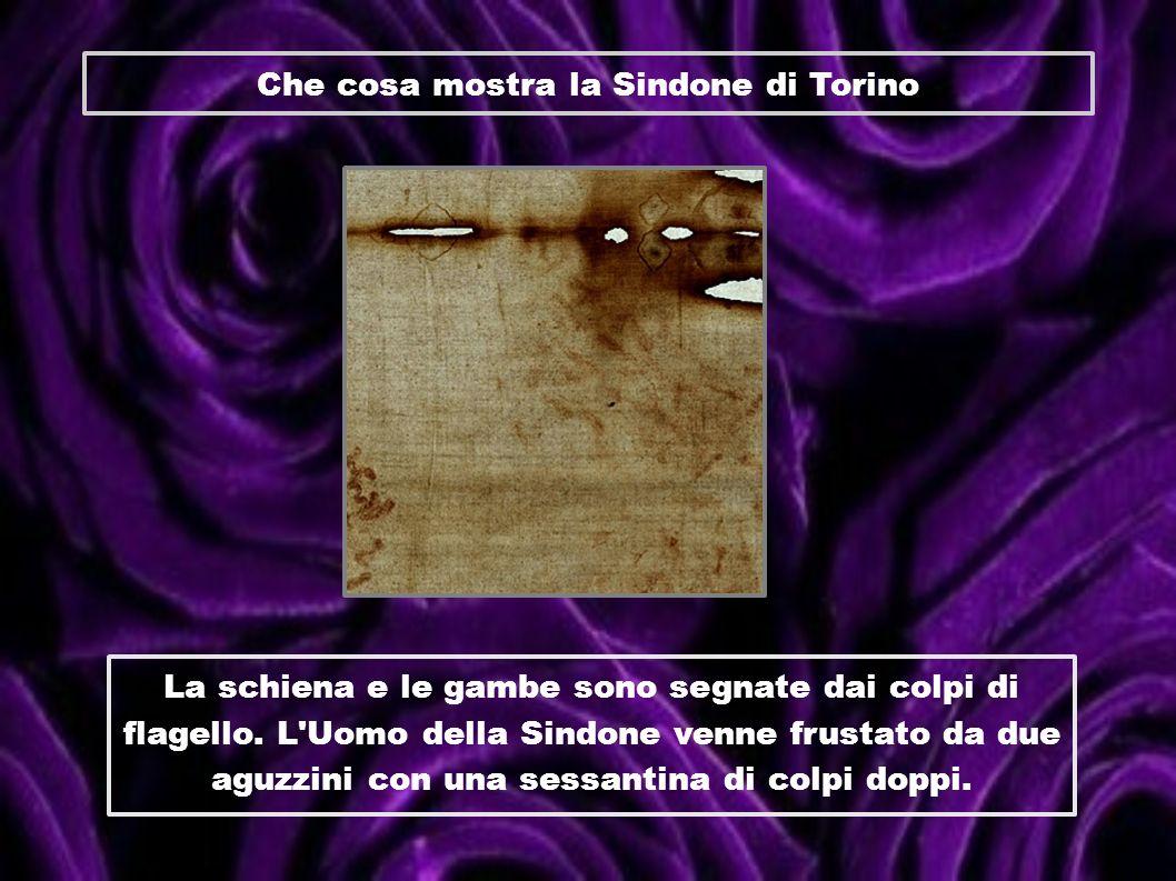 Che cosa mostra la Sindone di Torino La schiena e le gambe sono segnate dai colpi di flagello. L'Uomo della Sindone venne frustato da due aguzzini con