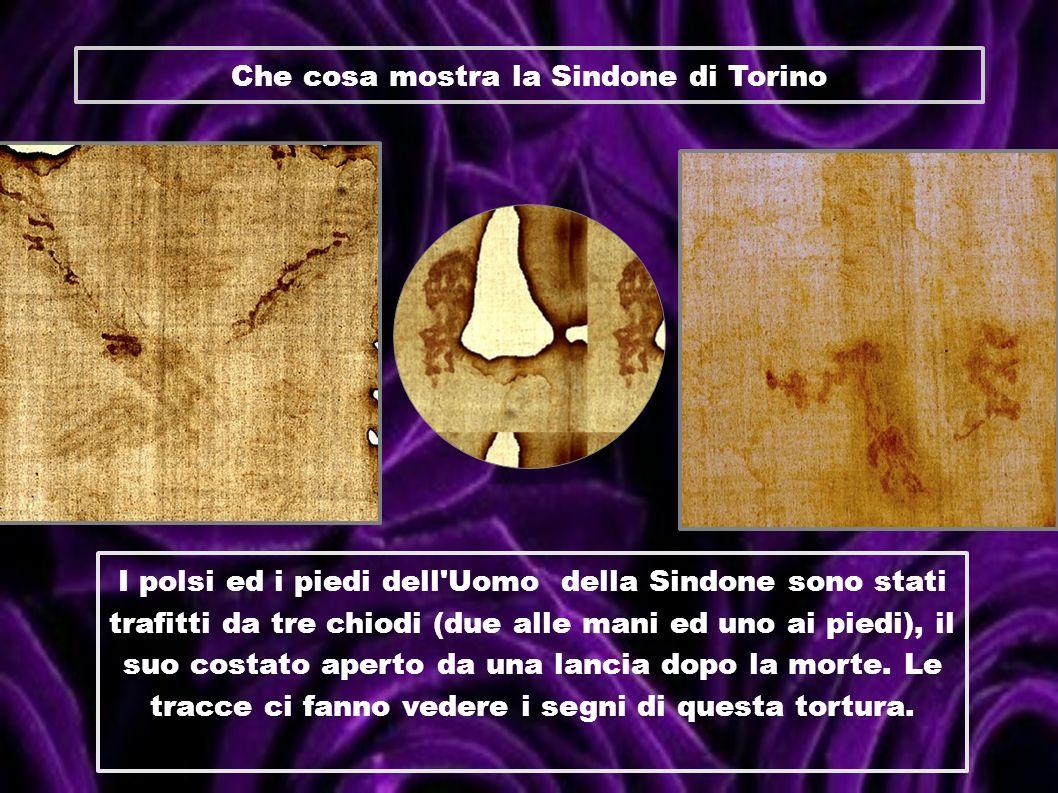 Che cosa mostra la Sindone di Torino I polsi ed i piedi dell'Uomo della Sindone sono stati trafitti da tre chiodi (due alle mani ed uno ai piedi), il
