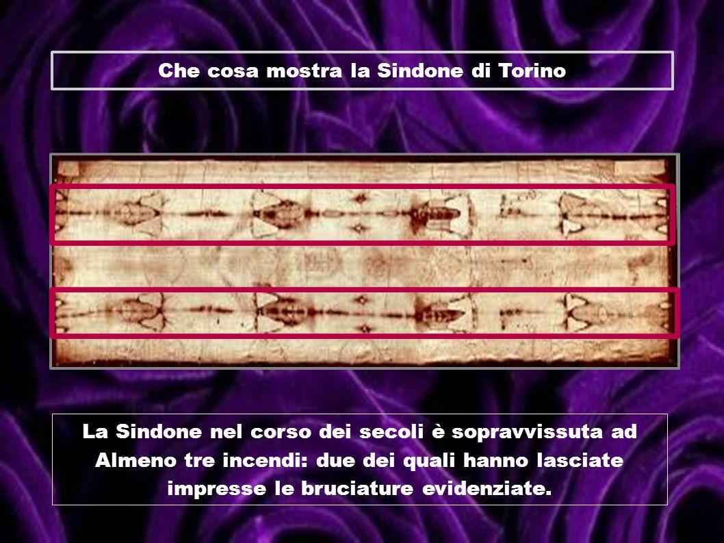 Che cosa mostra la Sindone di Torino La Sindone nel corso dei secoli è sopravvissuta ad Almeno tre incendi: due dei quali hanno lasciate impresse le b