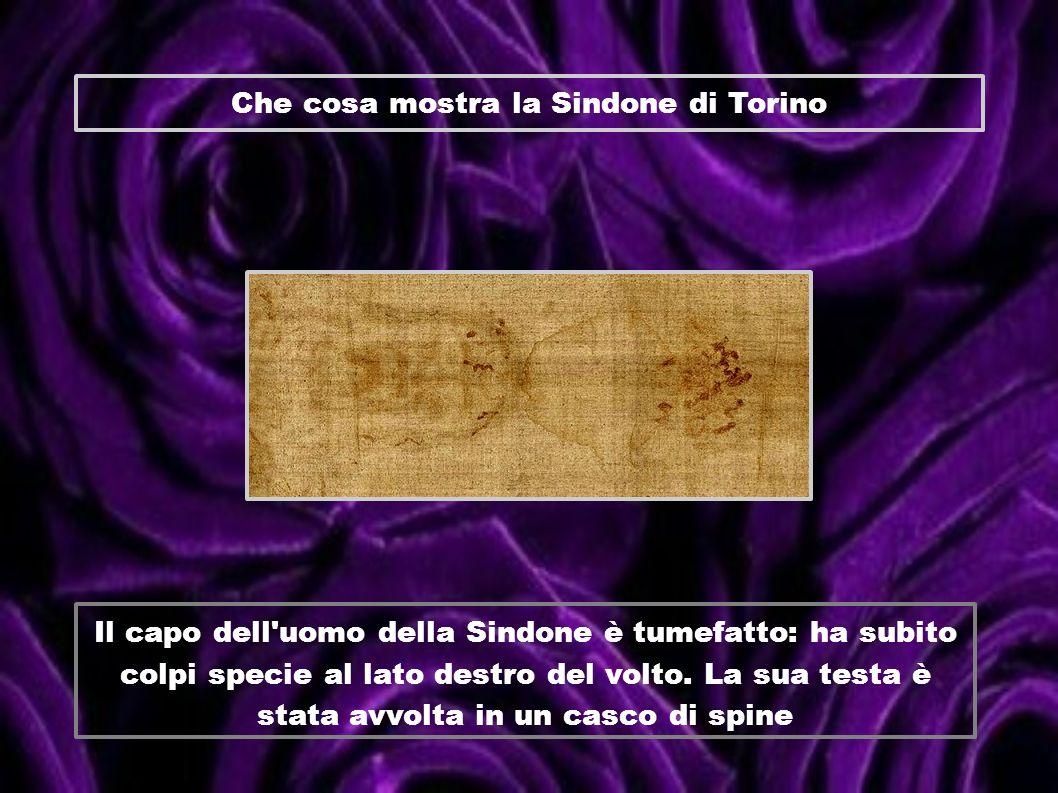 Che cosa mostra la Sindone di Torino Il capo dell'uomo della Sindone è tumefatto: ha subito colpi specie al lato destro del volto. La sua testa è stat