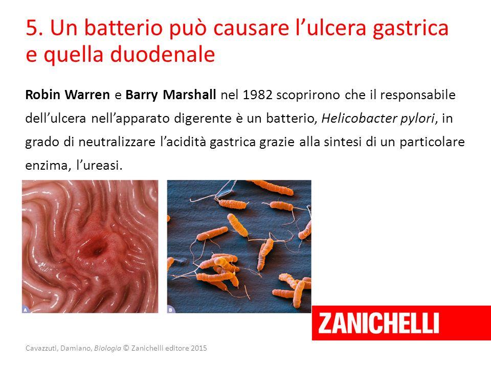 Cavazzuti, Damiano, Biologia © Zanichelli editore 2015 5. Un batterio può causare l'ulcera gastrica e quella duodenale Robin Warren e Barry Marshall n